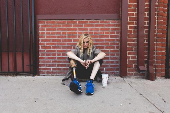モデルのローレン・ワッサーはなぜ片足を失ったのか?の画像