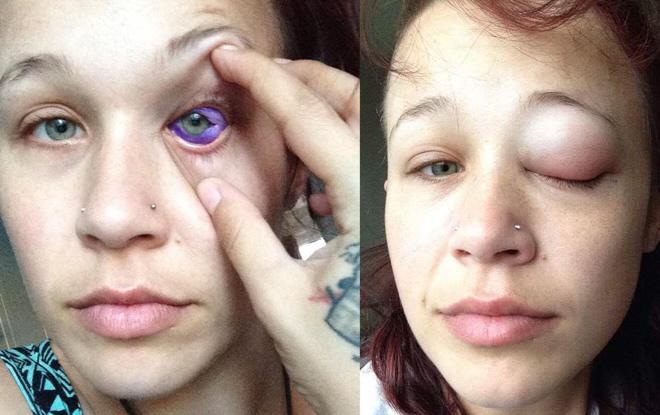 eyeball-tattoo-20171012_002.jpg