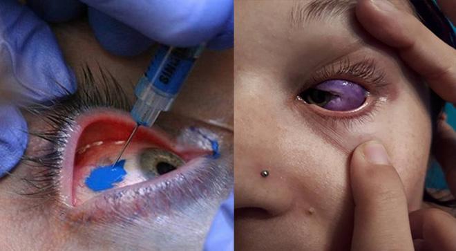 eyeball-tattoo-20171012_003.jpg